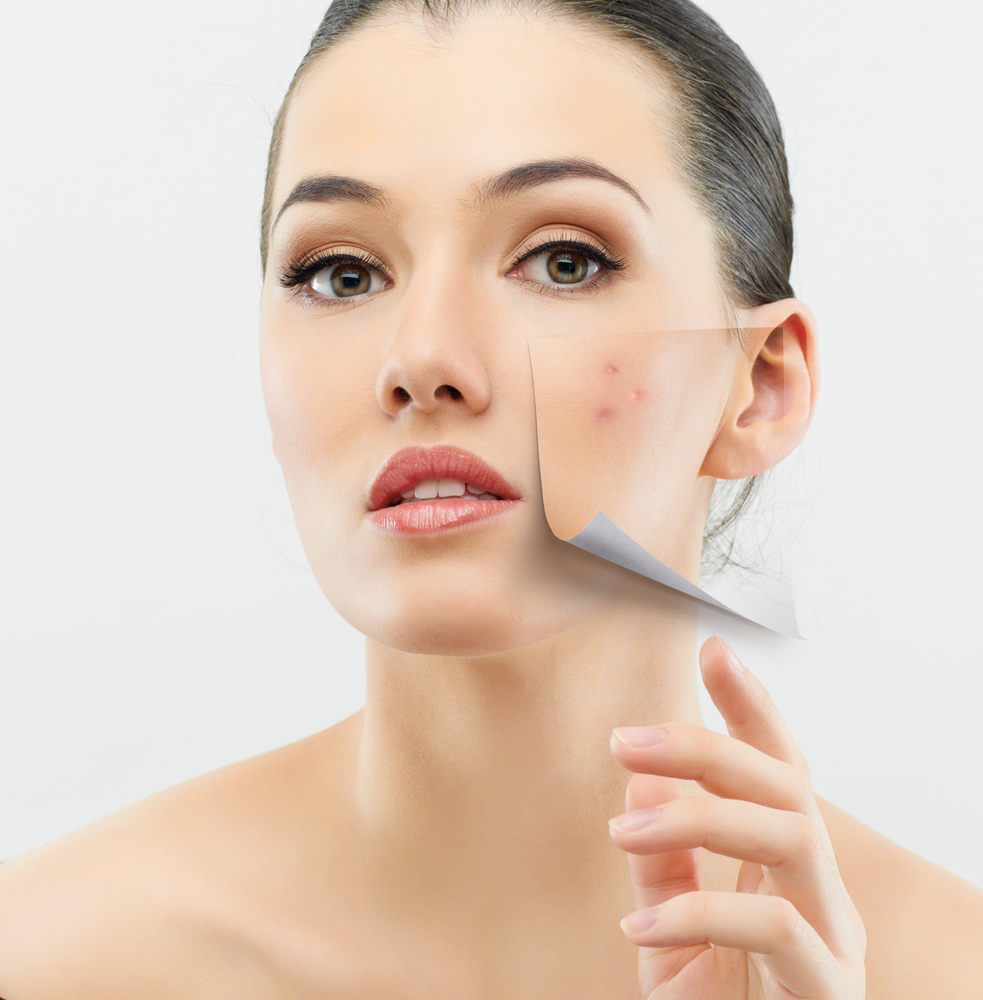 ways to fight a breakout - skincare tips for fighting acne