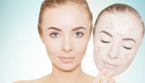 adult acne tips